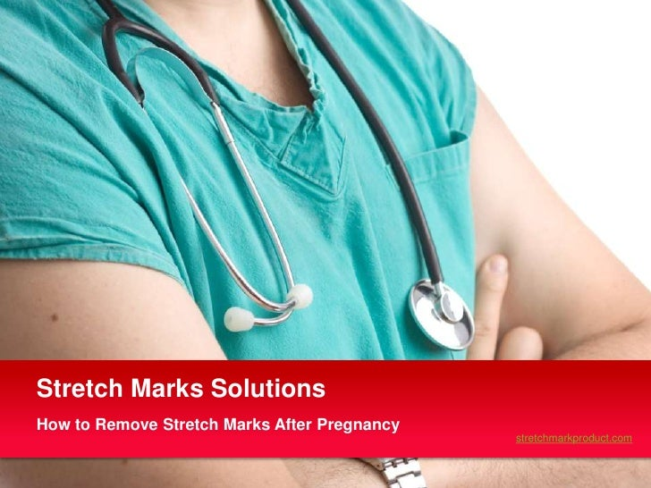 Stretch Marks SolutionsHow to Remove Stretch Marks After Pregnancy                                              stretchmar...