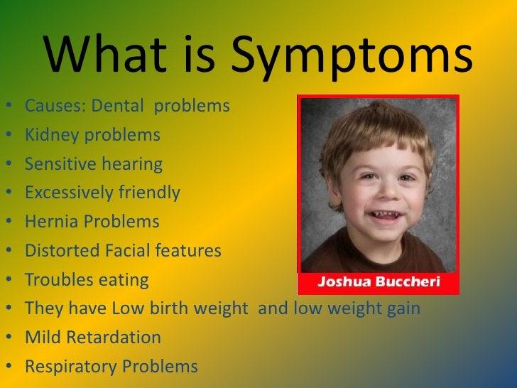 How williams syndrome facial