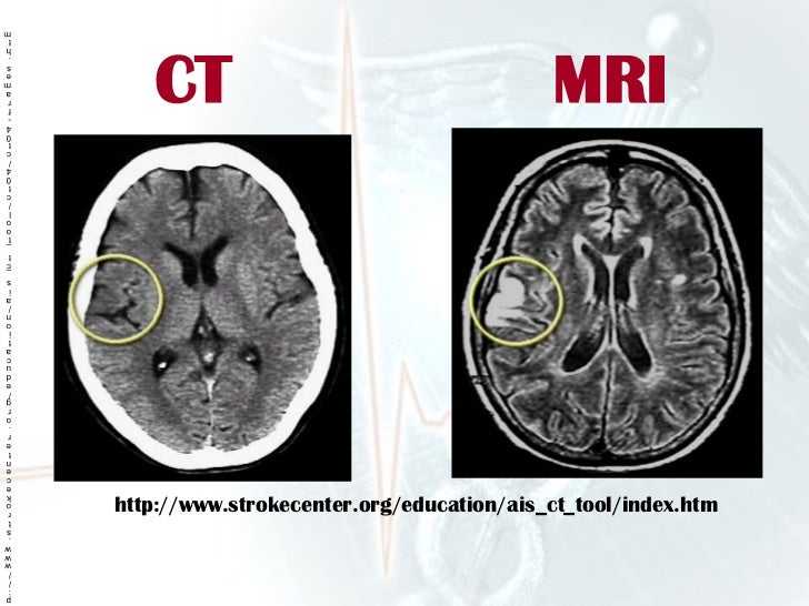 respond furthermore 10399850 also Jad160527 as well Seizures Lecture additionally Acute Brain Attack 911. on for embolic stroke brain