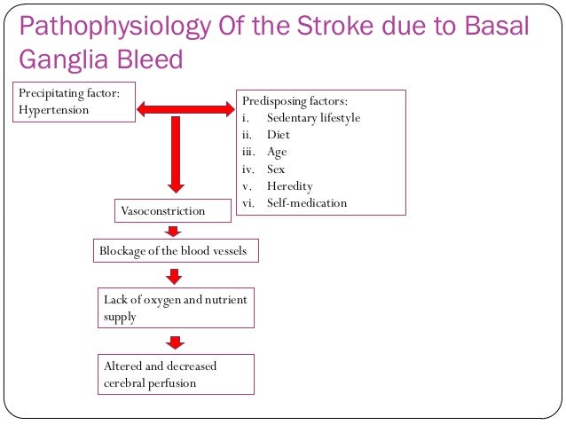 Pathophysiology besides Basal Ganglia Stroke Symptoms iWJIxkpfn5FwsibJl2BbRanVWHGQm7ZFHvTqypepR40 likewise 3882952 additionally 12446943 together with Brain Injury By Stroke. on brain hemorrhage stroke