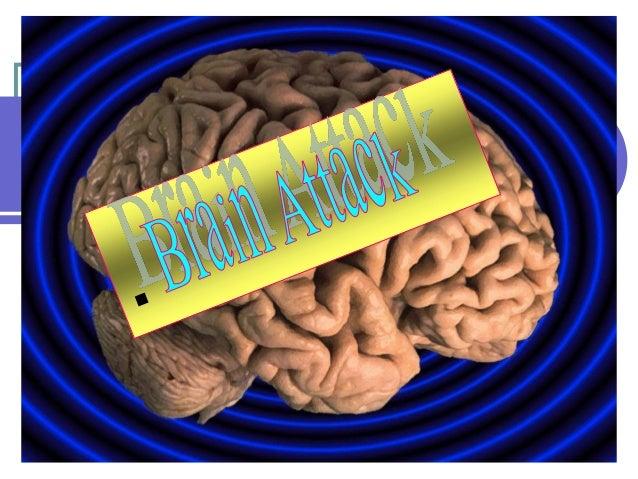 Stroke AKA  Cerebrovascular accident  Cerebral Infarction  Brain attack  2/13/2014  Maria Carmela Domocmat, MSN, RN