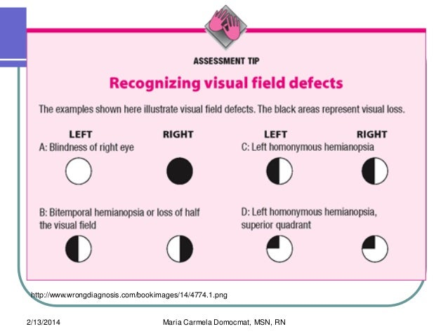 Related Keywords & Suggestions for homonymous hemianopsia ...