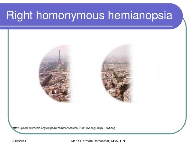 Binasal Hemianopsia Related Keywords - Binasal Hemianopsia ...
