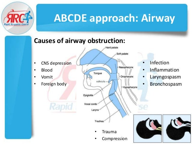 maintaining patient airways Airway management is an important priority for any critically ill patient airway adjuncts used to help maintain a patent airway may include relatively simple.