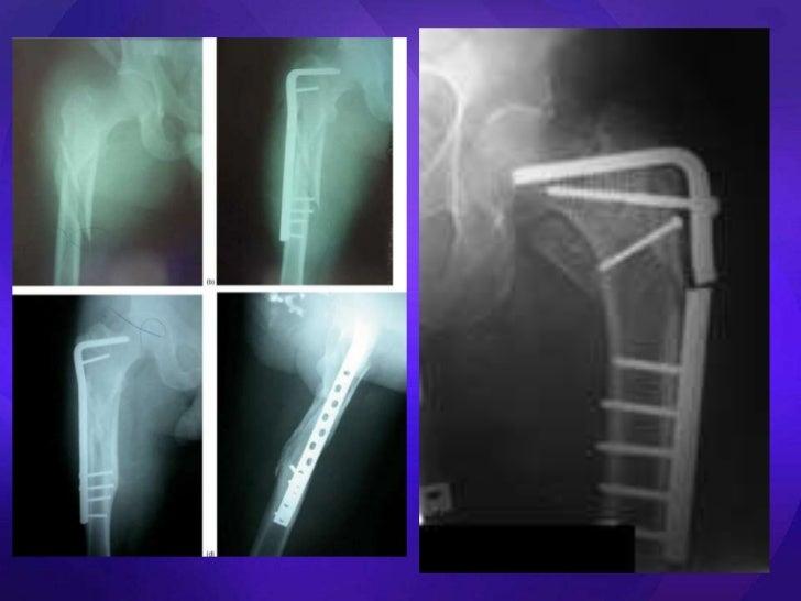 Aaos res study orthopedics