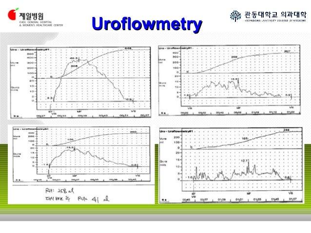 Uroflowmetry - More information