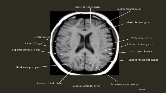 Centrum Semiovale Ct Brain Anatomy Pictures to Pin on ...