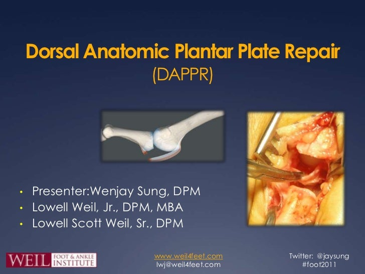 Dorsal Anatomic Plantar Plate Repair (DAPPR)<br /><ul><li>Presenter:Wenjay Sung, DPM