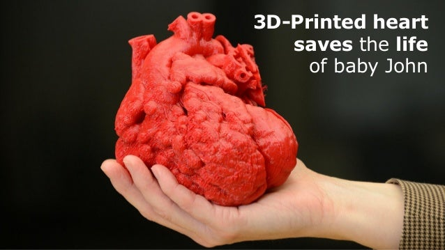Ok Computer - What Lies Beyond 3D Printing and How it will Save Your Life