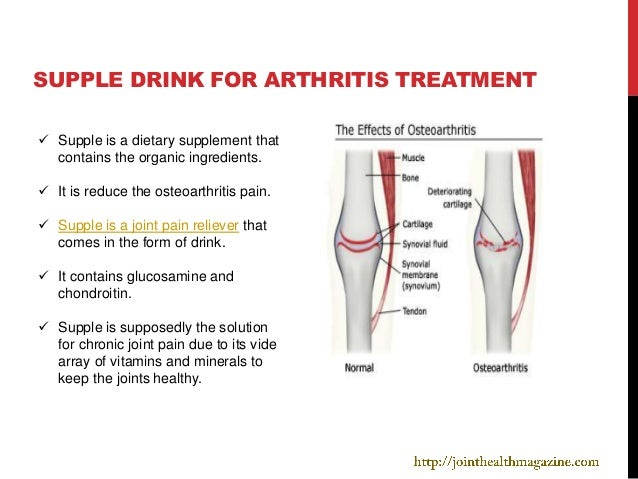 SUPPLE DRINK FOR ARTHRITIS TREATMENT Supple is a dietary supplement that  contains the organic ingredients. It is reduce...
