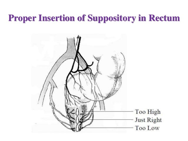 How to Use Rectal Suppositories Properly