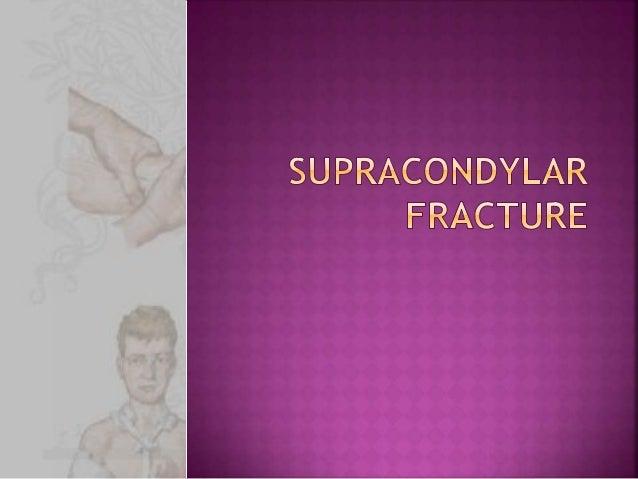 Supracondylar fractures in children