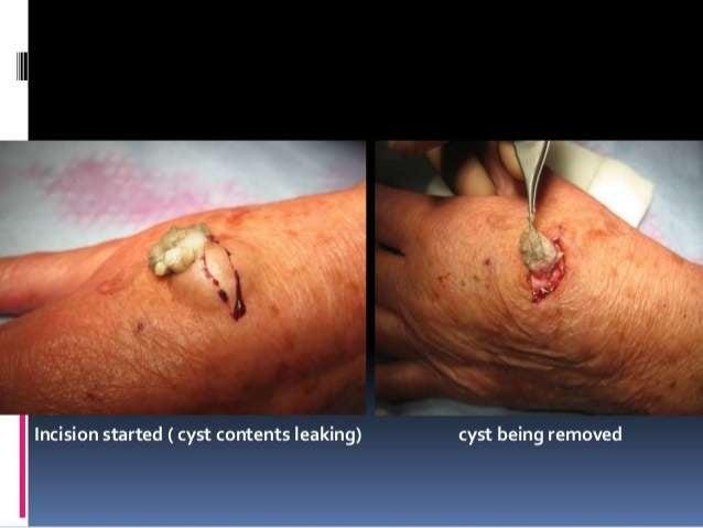 benign skin swellings