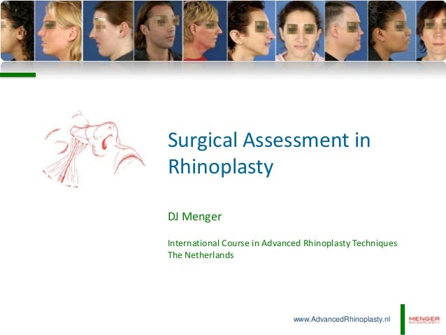 Surgical Assessment in Rhinoplasty