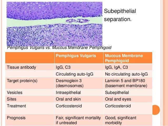Aphthous stomatitis  Wikipedia