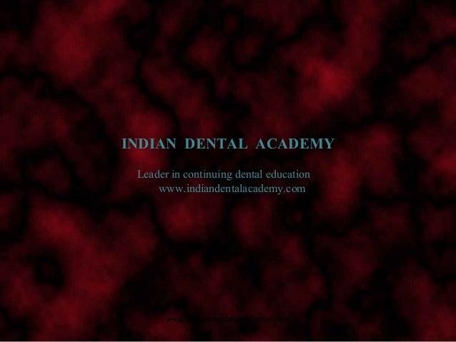 Surveying/ dentistry dental implants