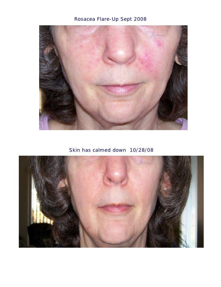 Rosacea Flare-Up Sept 2008     Skin has calmed down 10/28/08