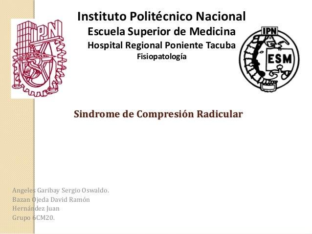 Instituto Politécnico Nacional Escuela Superior de Medicina Hospital Regional Poniente Tacuba Fisiopatología  Sindrome de ...
