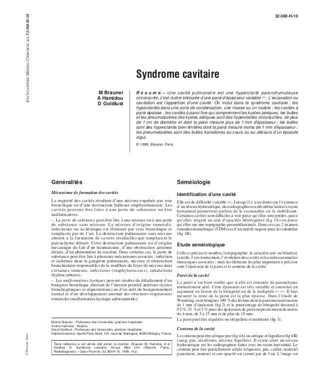 Syndrome cavitaire  M Brauner  A Hamidou  D Goldlust  32-360-H-10  R é s u m é. – Une cavité pulmonaire est une hyperclart...