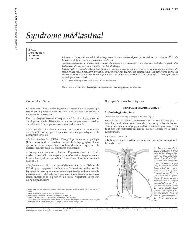 Syndrome médiastinal  R Tran  M Montaudon  V Latrabe  F Laurent Résumé. – Le syndrome médiastinal regroupe l'ensemble des ...