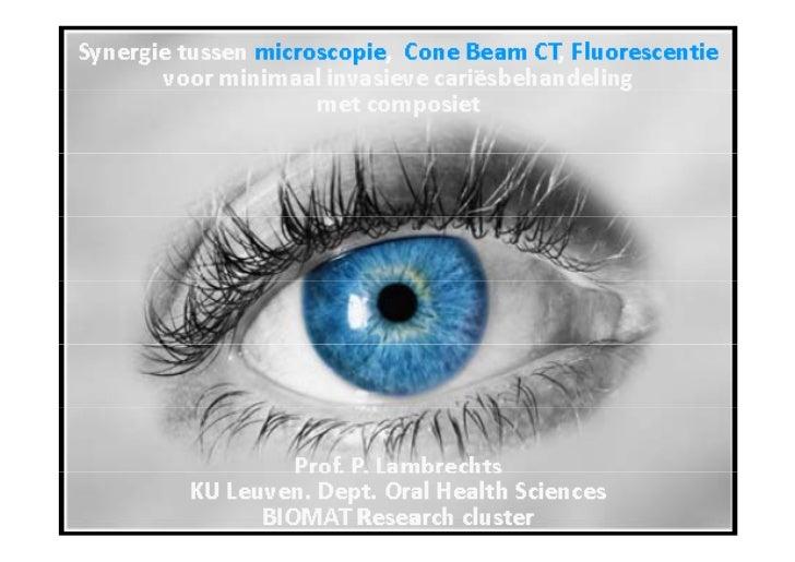 Synergie tussen microscopie & Cone Beam CT voor minimaal invasieve cariesbestrijding met composiet - Prof. Dr. P. Lambrechts