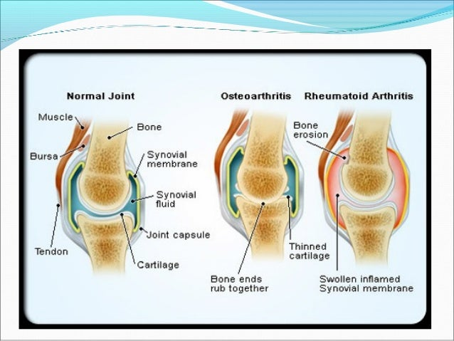 steroid injection knee dosage