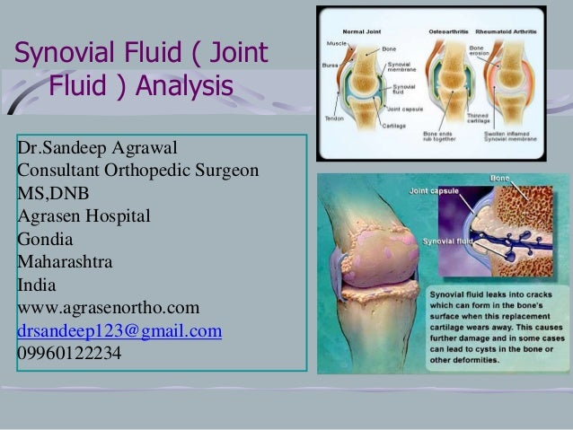 Gondia India  city pictures gallery : ... fluid analysis Dr.Sandeep C Agrawal Agrasen Hospital Gondia India