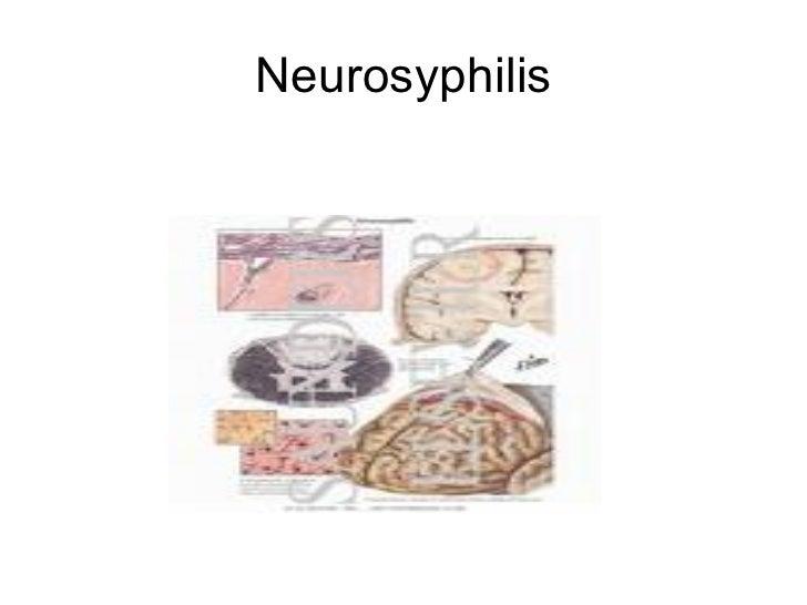 syphilis and neurosyphilis 101 multiple personality disorder german multiple personality disorder german