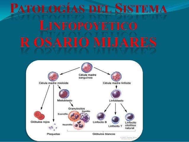 Systema linfopoyetico PATOLOGIAS   ROSSY MIJARES
