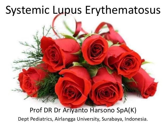 Systemic Lupus ErythematosusProf DR Dr Ariyanto Harsono SpA(K)Dept Pediatrics, Airlangga University, Surabaya, Indonesia.