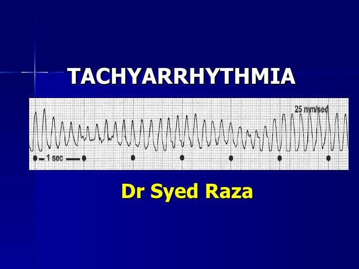TACHYARRHYTHMIA  Dr Syed Raza