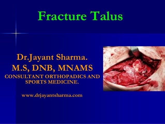 Talar fractures2
