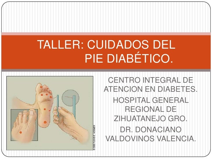 Taller pie diabético