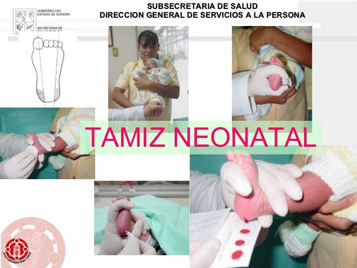 TAMIZ NEONATAL SUBSECRETARIA DE SALUD DIRECCION GENERAL DE SERVICIOS A LA PERSONA