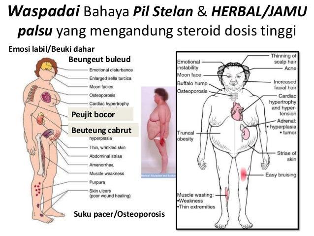 Waspadai Bahaya Pil Stelan & HERBAL/JAMU  palsu yang mengandung steroid dosis tinggiEmosi labil/Beuki dahar               ...
