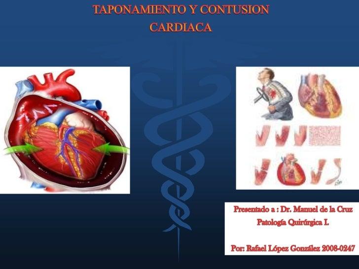 TAPONAMIENTO Y CONTUSION<br />CARDIACA<br />Presentado a : Dr. Manuel de la Cruz<br />Patología Quirúrgica I.<br />Por: Ra...