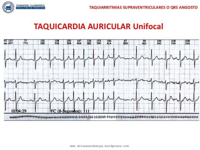 Enfermer@ en Urgencias y UCI : Manejo de Taquiarritmias en