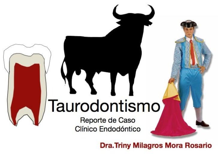 Taurodontismo