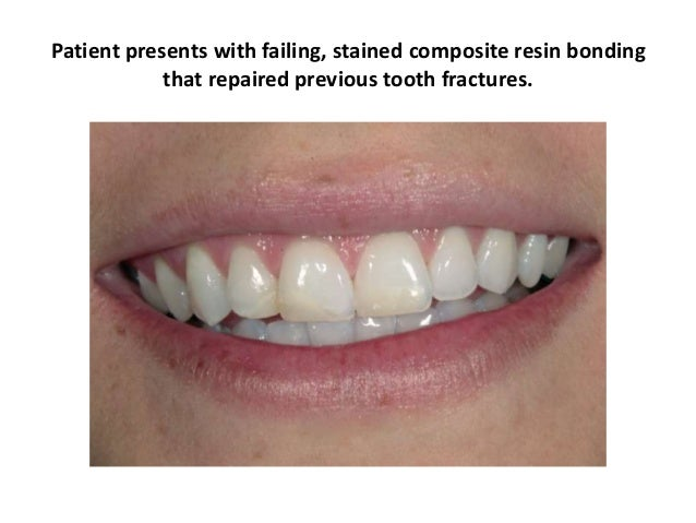 Patient presents with failing, stained composite resin bonding that repaired previous tooth fractures.