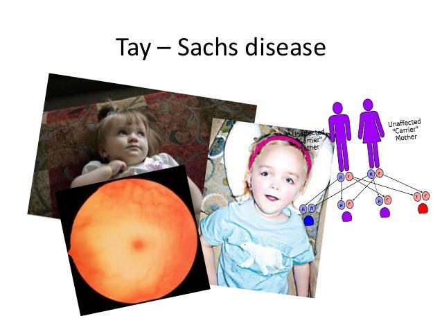 Tay – Sachs disease