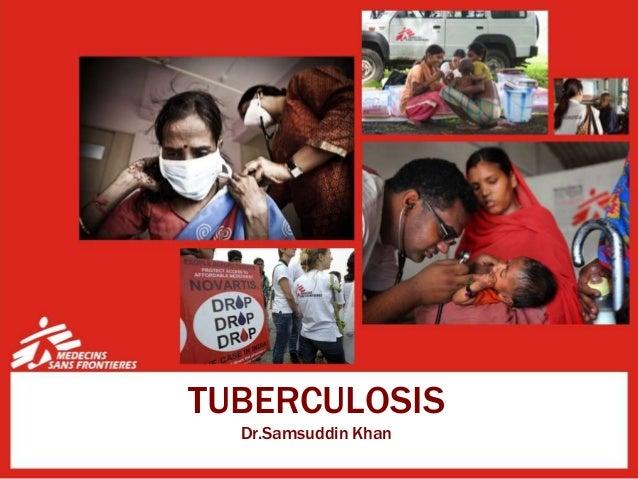 TUBERCULOSIS Dr.Samsuddin Khan