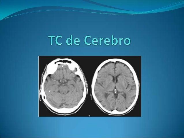 Tomografía computada (TC)  La TC, o también llamado escáner, es una técnica de imagen médica que utiliza rayos X para obt...