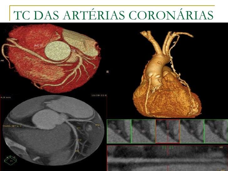 TC DAS ARTÉRIAS CORONÁRIAS