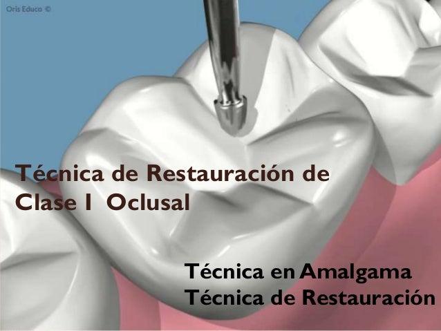 Técnica de Restauración de Clase I Oclusal Técnica en Amalgama Técnica de Restauración