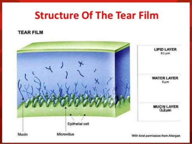 Tear Film Exchange: Just One More Reason RGP Contact Lenses May Be ...