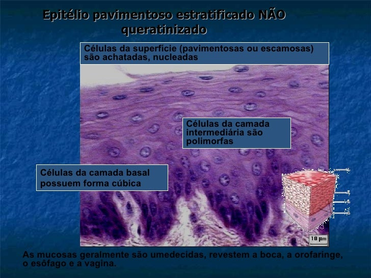 Epitélio pavimentoso estratificado NÃO queratinizado Células da camada basal possuem forma cúbica Células da camada interm...