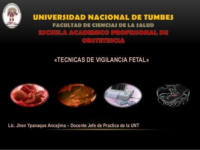 «TECNICAS DE VIGILANCIA FETAL»  Lic. Jhon Ypanaque Ancajima – Docente Jefe de Practica de la UNT