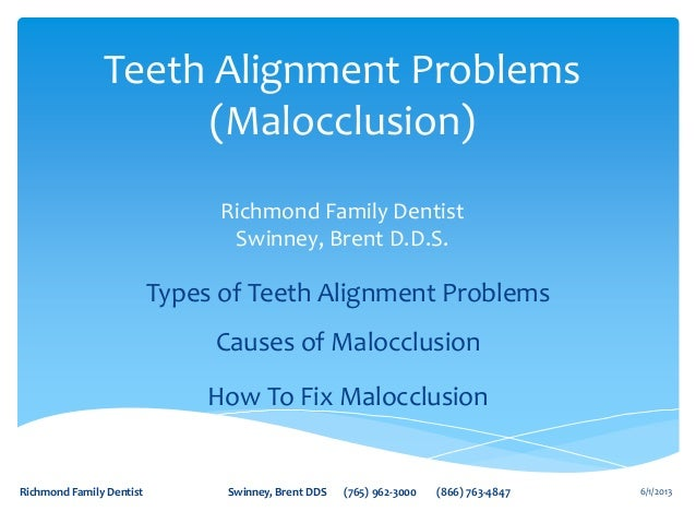 Teeth Alignment Problems or Malocclusion by Richmond Family Dentist