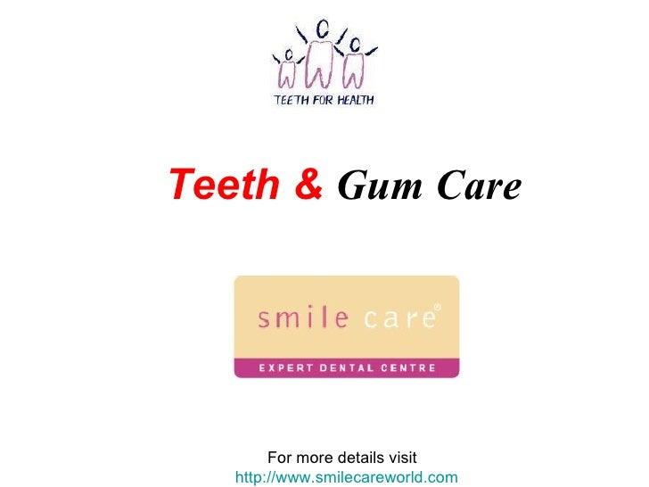 Teeth &   Gum Care For more details visit  http://www.smilecareworld.com