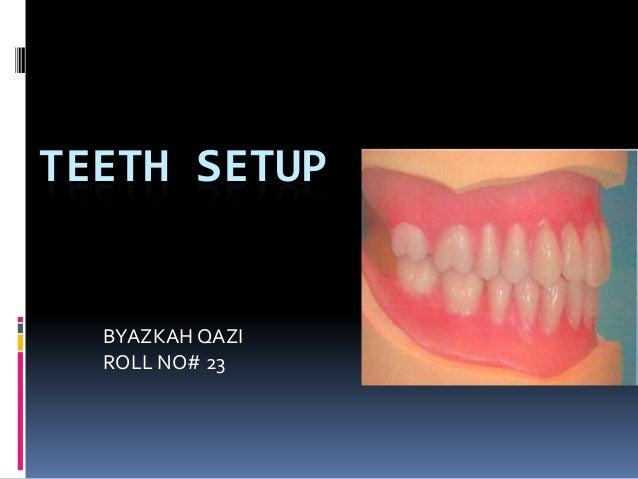 TEETH SETUP  BYAZKAH QAZI ROLL NO# 23